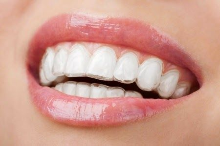 If you have questions or concerns about the different types of braces available today, and which of them may be the right choice for you, be sure to call us at Spring Cypress Dental.  #BRACESSPRINGTX