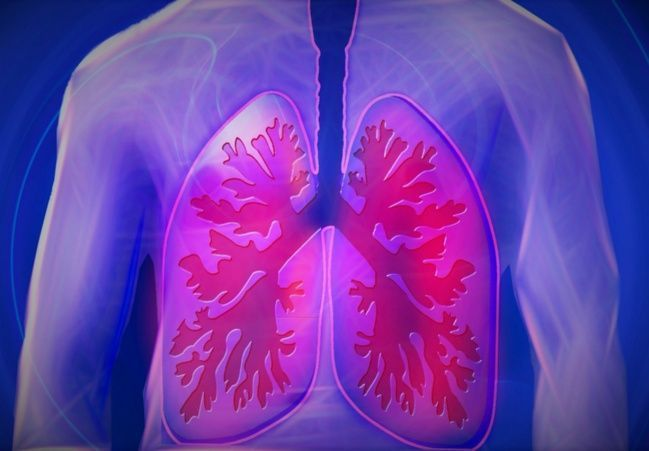 #ACTUALIDAD Neumonía: síntomas que no debes ignorar: Follow @DonfelixSPM   La neumonía es una infección de uno o los dos pulmones.…