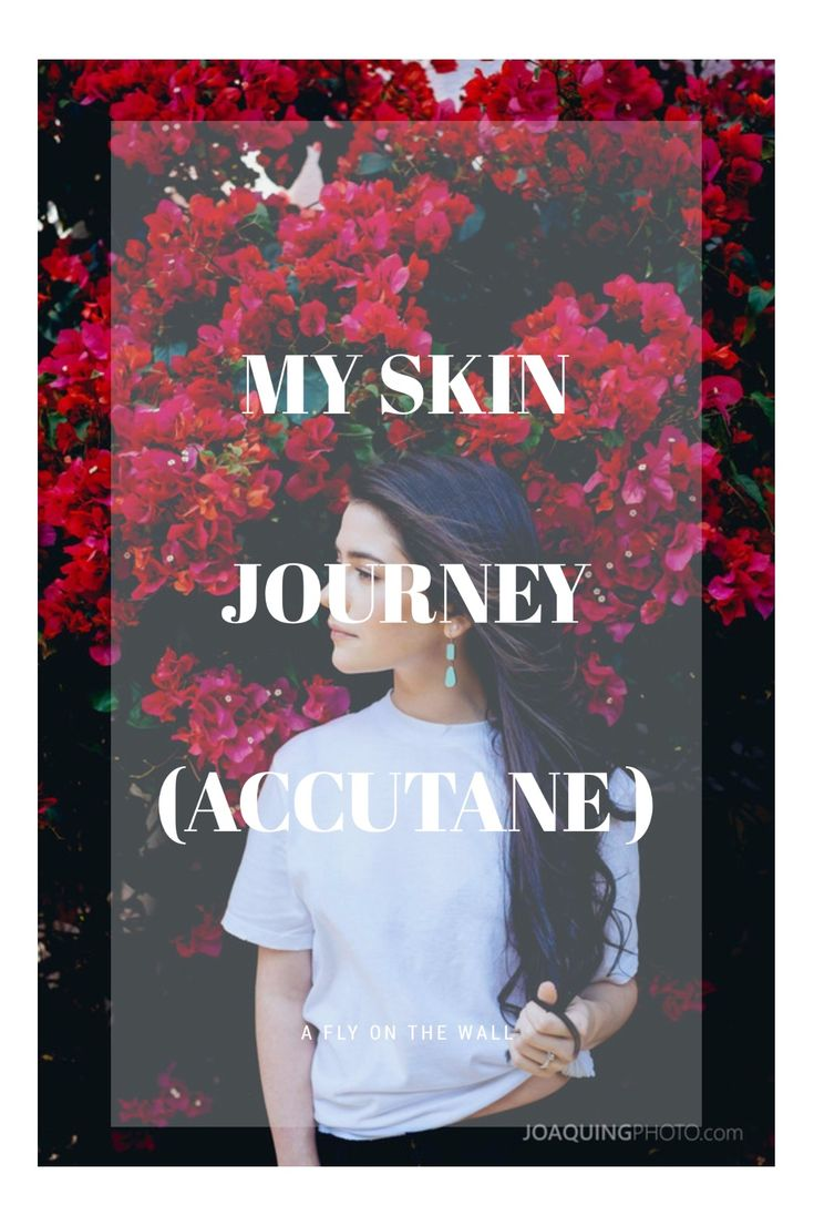 My skin journey. How taking accutane saved my confidence and my skin from acne!
