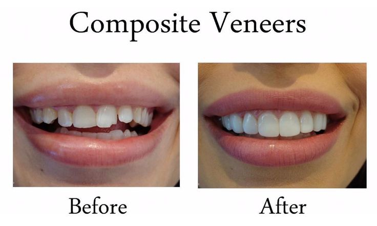 An absolutely perfect example of what our team here at classic smiles can achieve Composite Veneers before and after photos. Composite veneers are ultra-thin shells affixed onto the front of the patients teeth giving them a whiter longer and more beautiful smile. Patients work with the team to achieve their ideal smile colour shape and size. Please feel free to call us on 9543 6666 for more information #teeth #compositeveneers #veneers #sydneydental #sutherlandshirecosmetics #beautiful…