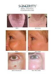 skincerity before and after - wrinkles & scars gone, tightness and youth back!!! Order at www.ewatt.mynucerity.biz