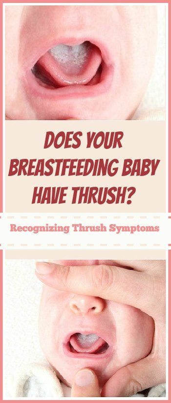 What to do if your baby has thrush symptoms and how to fix BOTH of you!