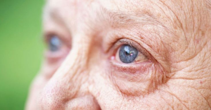 Aging eyes are more likely to develop eye diseases that cause blindness. Find out how to spot early signs of 4 common eye diseases & how they affect vision.