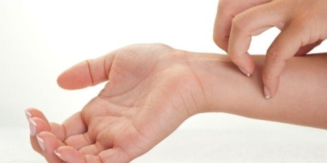 Home Remedies For Skin Allergies and Itching