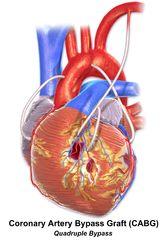Coronary artery bypass surgery - Wikipedia, the free encyclopedia