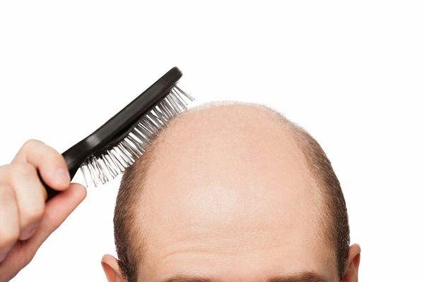 enfermedades del cuero cabelludo
