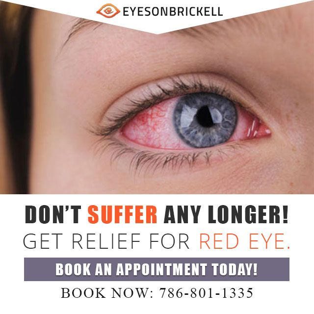 9156a12068 Are you looking for the best red eye treatment in  Miami  Call Eyes On  Brickell