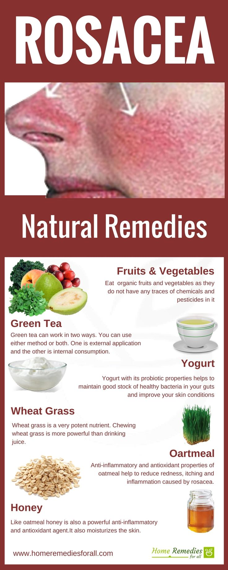 Get rid of Rosacea quickly with the use of these home remedies regularly and get your face free of itch and pain.