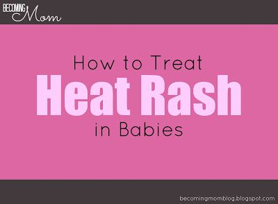 Becoming Mom: Heat Rash: What It Is and How to Treat It. A breakdown of which suggested treatments work the best for clearing up heat rash.