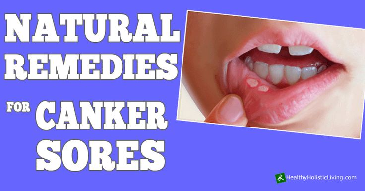 Finding natural treatments for Canker Sores is something that will help you to deal with the discomfort, if indeed you find the pain difficult to cope with. Degrees of pain or discomfort do vary from...