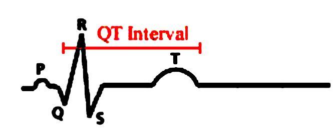Qt lungo: cosa usare per analizzarlo?