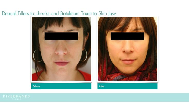 I used Botulinum Toxin (Azzalure, UK) to slim her jawline by injecting into her overdeveloped chewing muscles, and then augment her cheeks and cheekbones to give her face a more oval look.