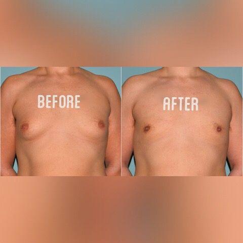 Gynecomastie ou réduction mammaire chez l'homme effectuer par le Dr. Chen Lee à Montréal. Pour plus d'infos ou pour prendre un rdv n'hésitez pas à nous contacter au 514 932 7667.