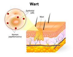 Natural Rx: How to Cure Warts Naturally   When you begin treating a wart be aware that depending on the size and type it is, it can take weeks to get rid of – sometimes months. If you experience progress with a treatment, keep at it and be patient. Plenty