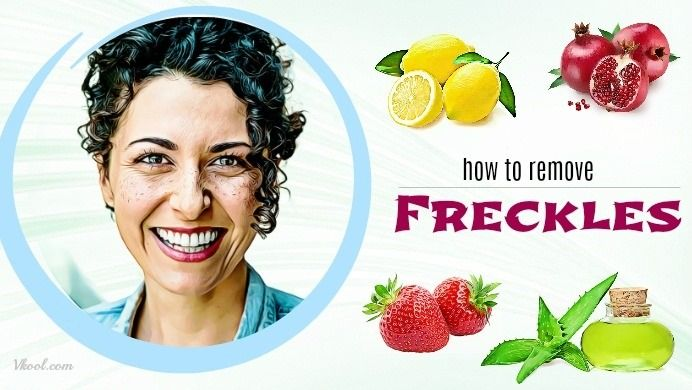 How to remove freckles is a newly updated article which shows many useful ways to remove freckles at home with ease.