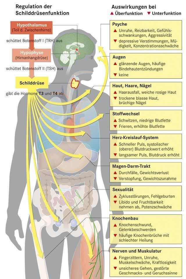 Schilddrüsenunterfunktion (Hypothyreose) | Apotheken Umschau