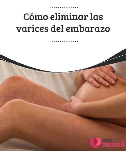 Cómo #eliminar las #varices del embarazo   Las hormonas, el #aumento en el #peso y la presión que ejerce el útero son solo algunos factores que llevan a sufrir de varices durante el #embarazo
