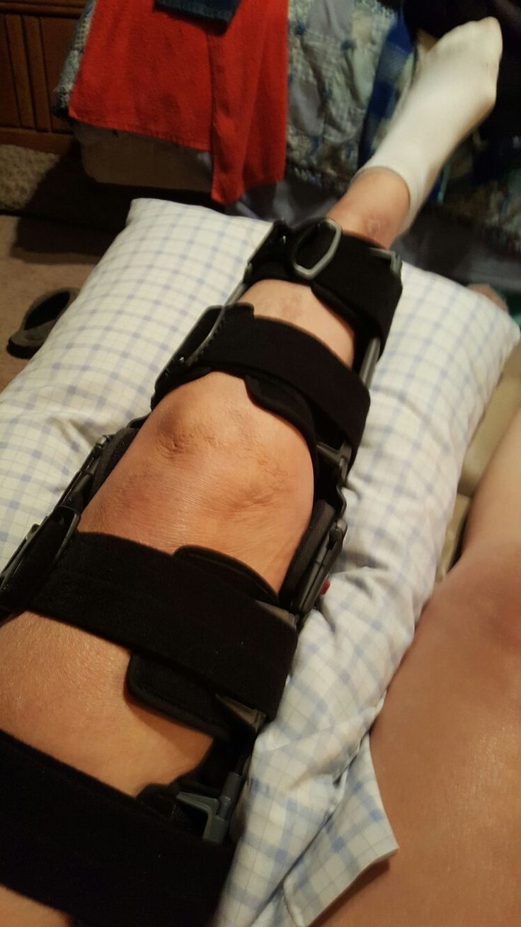 Grade 2 mcl sprain symptoms - I Am Wearing This For 16 Weeks Due To Displacing A Joint In My Knee And Tearing My Mcl Medial Collateral Ligament