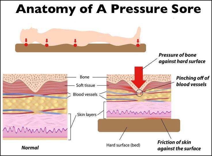 pressure ulcers from pressure - google search | pressure ... foot diagram pressure ulcer 1992 yamaha timberwolf brake foot diagram #5