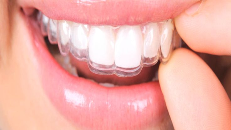 We strongly recommend protecting your investment in your new smile with custom-fit SmileDirectClub Invisible Retainers. Without retainers, teeth have a tendency…