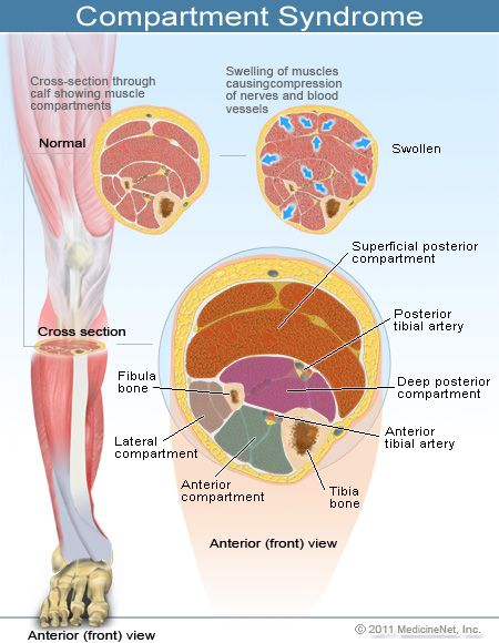 compartment syndrome - Google Search