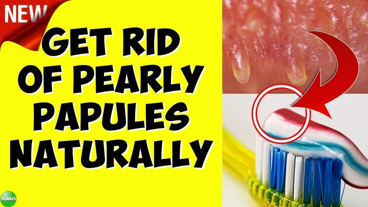 Pin on pearly penile papules removal easy and quickly