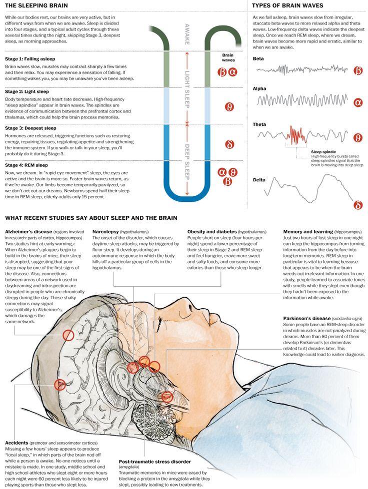 Sleepy brain