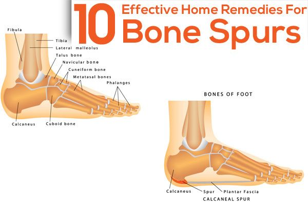 Natural Remedy For Bone Spurs In Neck