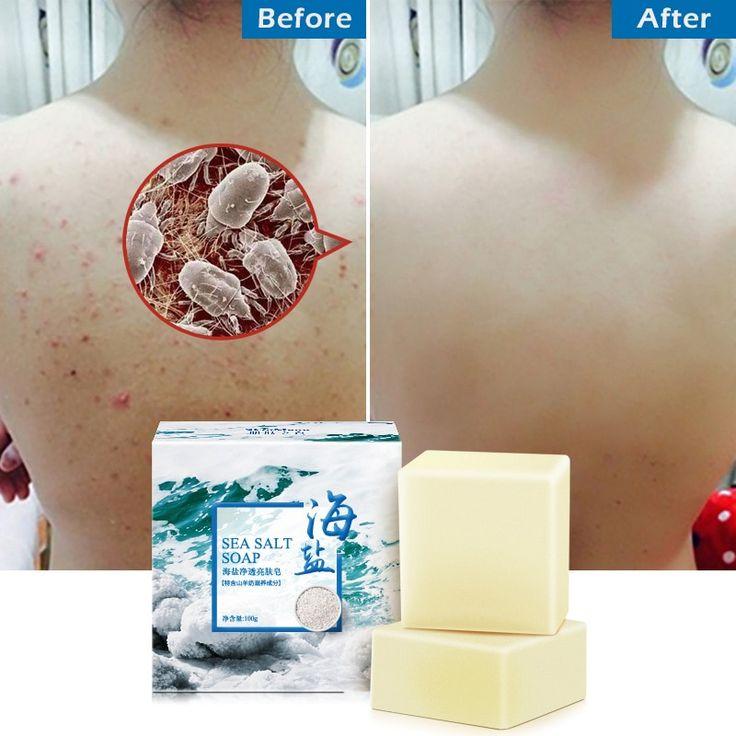 100g removedor de granos para tratamiento de acné de mar