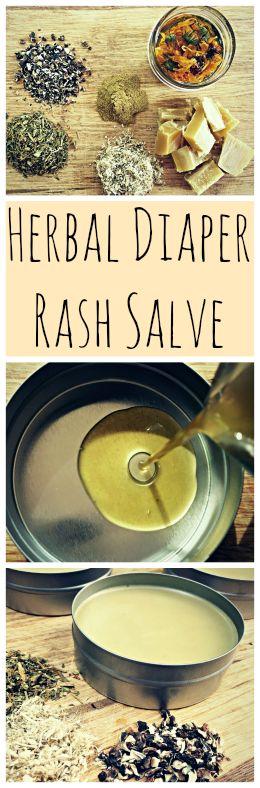 A recipe for a homemade, DIY herbal diaper rash salve that works!