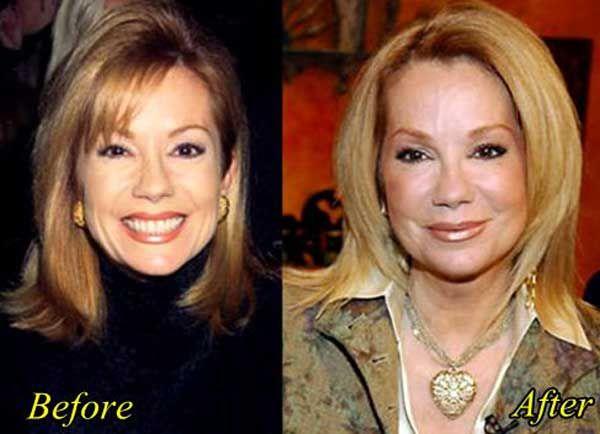 has kathie lee gifford had plastic surgery