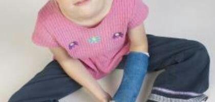 Creatividad ante todo. Ideas para pintar una escayola de un brazo roto. Desarrollar creatividad niños. Sacarle partido a TODO = ARTE. Psicología positiva= ARTE. Importancia de que para los niños, el vaso SIEMPRE este medio lleno, depende de sus padres, herramienta= ARTE