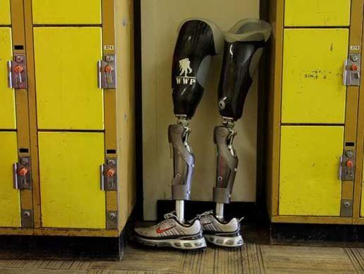 prostetic robotic limbs | Major Advances in Robotic Prosthetics : Discovery News