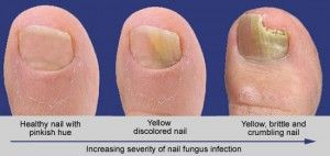 Cure For Toenail FungBest us Treatment
