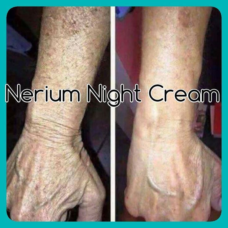 Nerium Night Cream on her arms?! Amazing stuff!! Patented ingredients only exclusive to Nerium nothing else like it! by {Ed Zimbardi http://edzimbardi.com