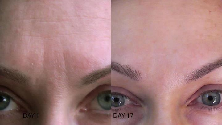 Wrinkles no more.