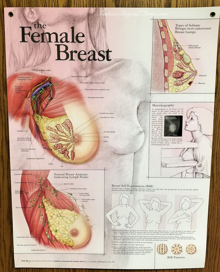 48 best fibrocystic breast disease/guttate psoriasis(ashlyn, Skeleton