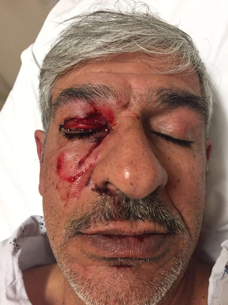 A 55-year old Palestinian-American instructor at a community college in North Carolina was brutally beaten by members of the Jewish Defense League (JDL) while walking by the AIPAC conference in Was…