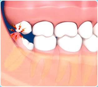 Swollen gum behind wisdom tooth. Cammarata Pediatric Dentistry in Houston, TX @ kids-teeth.com
