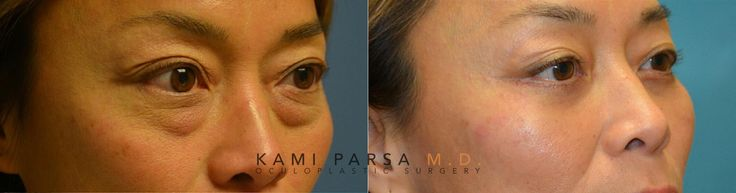 This beautiful patient underwent #lowereyelid #blepharoplasty with #fatinjection and Co2 #laser resurfacing. The picture below is a one month post op photo.