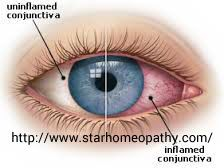 Homeopathy treatment for conjunctivitis : Here we come with the #excellent #homeopathic #remedies for #Conjuctivitis visit us @ http://www.starhomeopathy.com/conjunctivitis.php