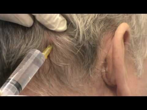 Greater Occipital nerve injection technique