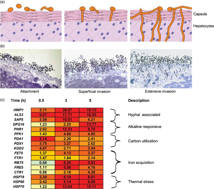 See figure: 'Figure 3: Candida albicans invasion of liver tissue. (a) Candida...' from publication 'Identifying infection-associated genes of Candida albicans in the postgenomic era' on ResearchGate, the professional network for scientists.