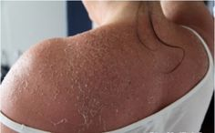 Home Remedies for Peeling Skin Treatment There are a number of skin related problems depending on the type of skin. Some problems are associated with oily skin such as acne, blackheads, whiteheads etc. while others are linked to dry skin and the most prominent are peeling of skin. So start reading this article, you will get home... #10BestRemediesForPeelingSkin, #AvoidPeelingSkin, #CurePeelingSkin, #GetRidOfPeelingSkin, #GetRidOfPeelingSkinFast, #GetRidOfPeelingSkinNaturall