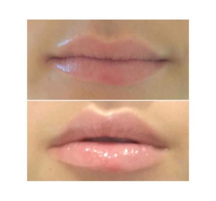 PLUMPING LIPGLOSS Do you want plump lips without the needles? I'm loving the plumping lipgloss, it stimulates the collagen production to naturally enhance the Cupid's bow. If you use it twice a day for 28 days you could have naturally more luscious lips  https://www.facebook.com/groups/631907220347618/