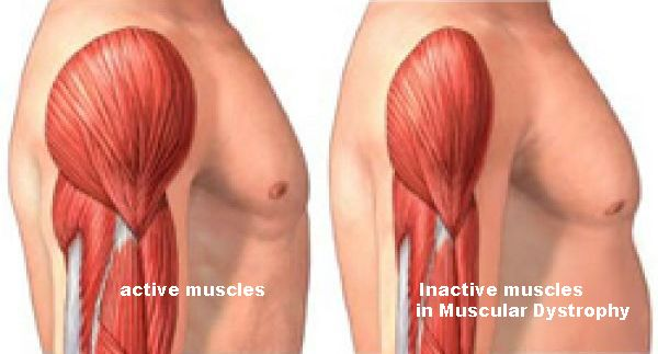 MUSCULAR DYSTROPHY TREATMENT - YOGA THERAPY ~ GOindiya.blogspot