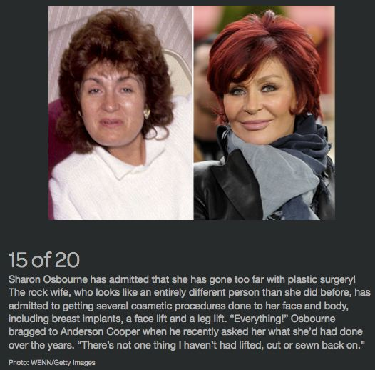 Celebrity Plastic Surgery 24 - Before & After Breast ...