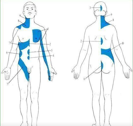 Зоны отраженных болей при заболеваниях внутренних органов (зоны Захарьина – Геда)