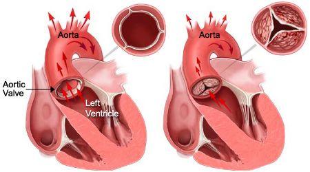 Aortic Stenosis: Congenital Aortic Valve Stenosis And Rheumatic Aortic Stenosis
