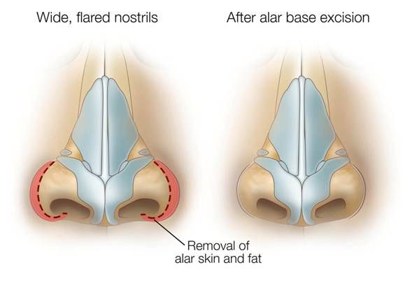 Wide Nostrils Rhinoplasty Illustration from SpaMedica Toronto